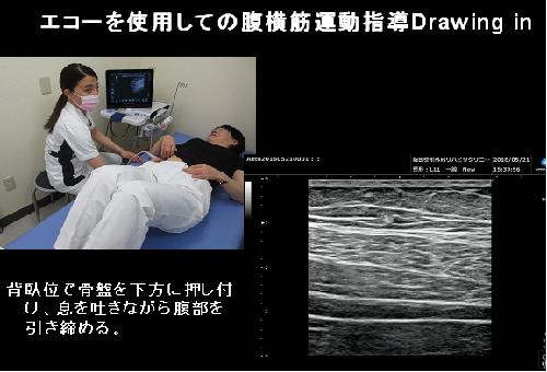 体幹安定化運動・腹横筋・多裂筋強化の指導